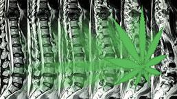 Marijuana and Spinal Cord Injury